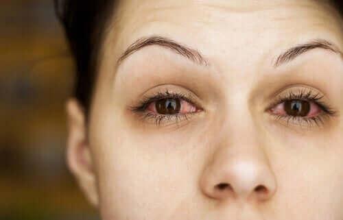 Kvinne med røde, tørre øyne.