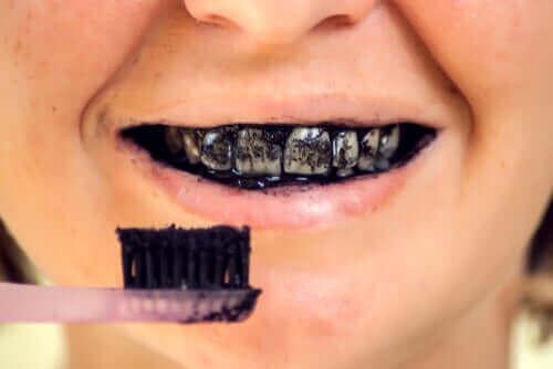 Risikoen med aktivt kull for oral helse