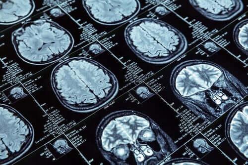 MR-bilder av en hjerne