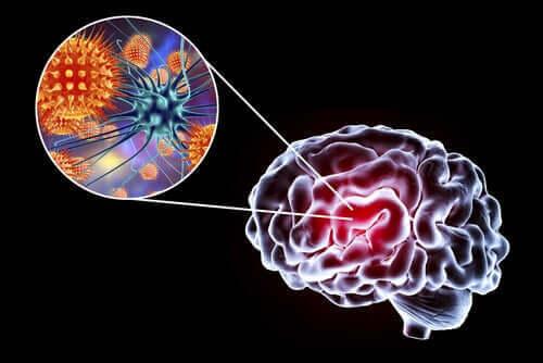 Encefalitt: symptomer, årsaker og behandlinger
