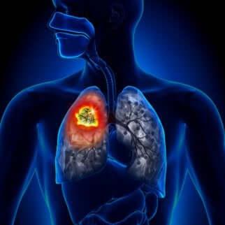 Forskjellige typer lungekreft