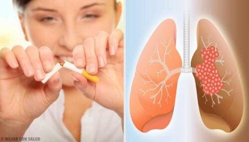 Årsaker og diagnose av lungekreft