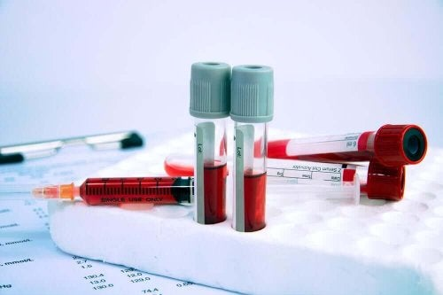 Testrør med blod