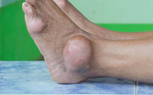 Urinsyregikt i foten