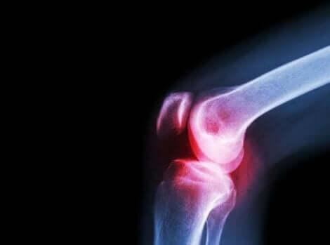 En røntgenstråle som viser leddsmerter, et av symptomene på lupus.