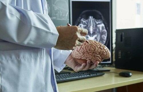 Lege holder en hjerne i plast