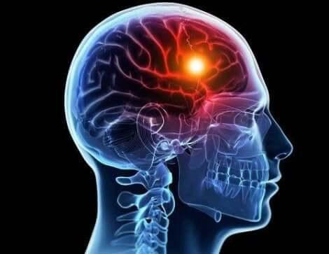 Opplyst område i hjernen