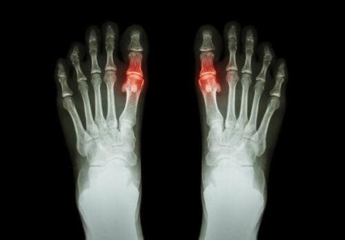 Røntgen av føtter.