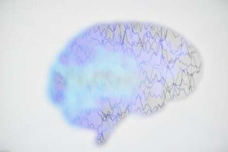 En EEG av hjernen.