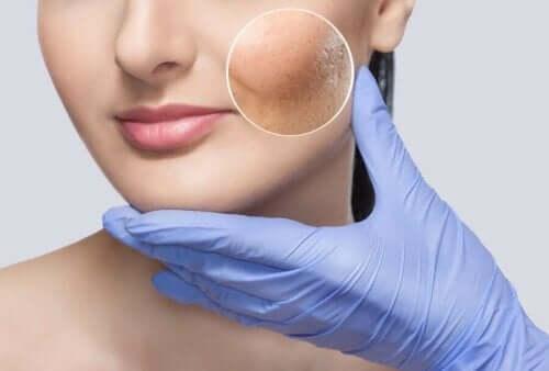 En hudlege som undersøker pasientens hud før Soft Lift.