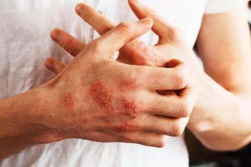 En mann med psoriasis på hendene.