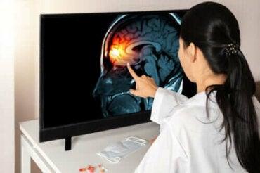 Lær alt det er å vite om hjernehinnene
