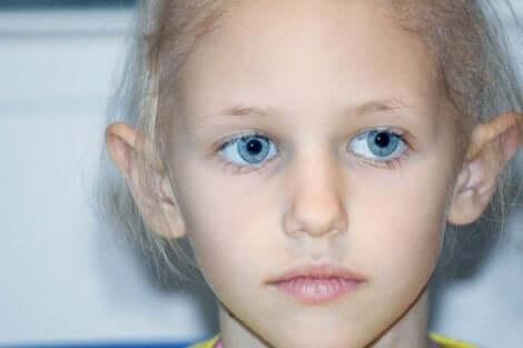 Barn med retinoblastom