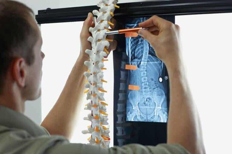 Beinmetastase: symptomer og behandlinger