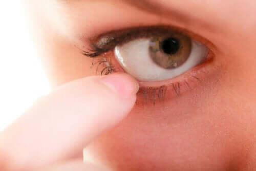 En person med øyesykdom.