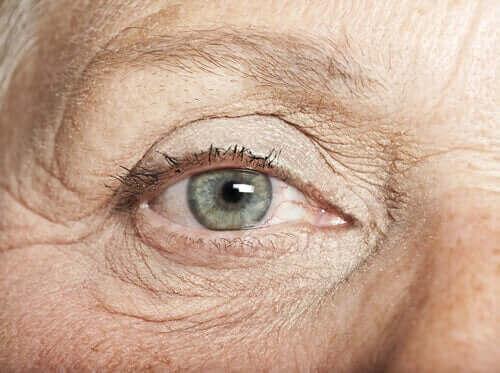 En person med okular nevi.