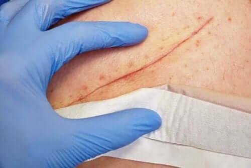 Klorheksidin kan brukes til å rense sår.