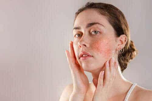 Reaktiv hud: symptomer, årsaker og behandling