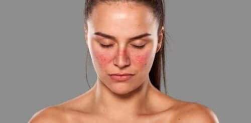 Kvinne med utslett i ansiktet