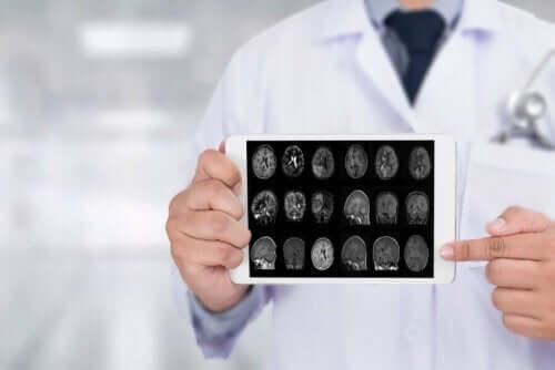 lege holder bilder av hjernen