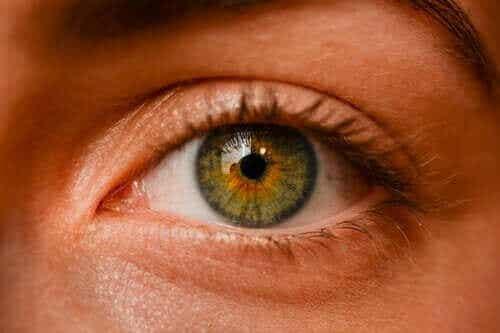 Okulær nevi – Er fregner i øynene farlige?