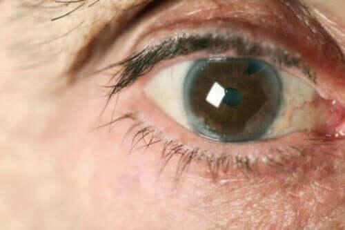 Et nærbilde av et øye med glaukom