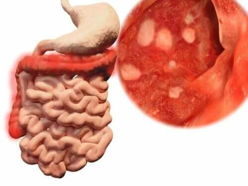 En grafikk som viser tarmene og en infeksjon som kan oppstå hvis du spiser mat som har falt på bakken.