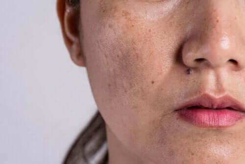Kvinne med melasma i ansiktet, hudforandringer på grunn av graviditet.