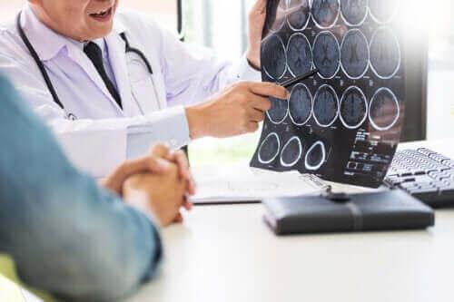 Nevrogluten: Gluten og nevrologiske sykdommer