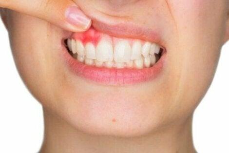 Tannkjøttbetennelse i tannkjøttet, hyaluronsyre kan bekjempe visse forhold.