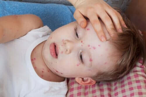 Hvordan behandle elveblest hos barn