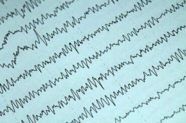 Slik kan du håndtere epilepsi og amming