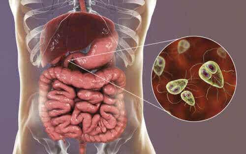 Symptomer og behandling av giardiasis