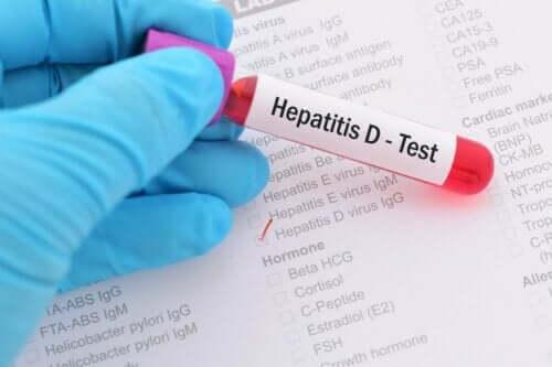 Hepatitt D-prøve