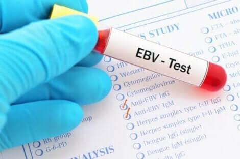 Epstein-Barr virus er hovedagenten bak mononukleose. I en analyse er det kjent ved initialene EBV.