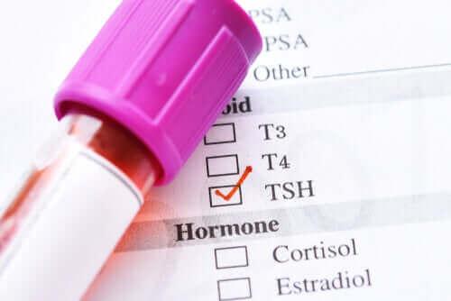 Årsakene til lave nivåer av skjoldbruskkjertelstimulerende hormon