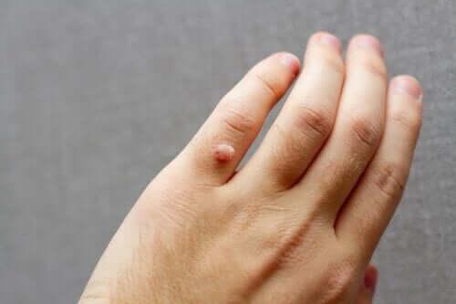 En vorte på en persons finger