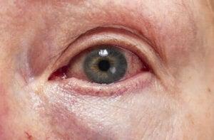 Diagnose og behandling av uveitt