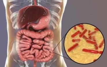 Slik vet du om tarmmikrobiomet ditt er skadet