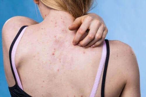 10 typer hudutslett og årsakene til dem