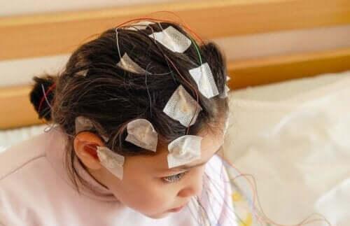 Et barn undersøkes for epilepsi