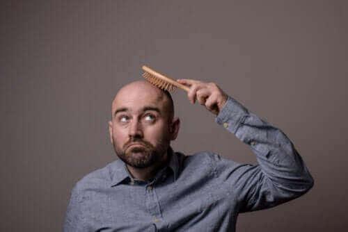 Alt om de forskjellige typene alopecia