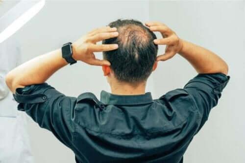 En mann med tynt hår