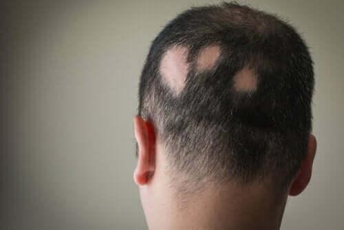 En mann med alopecia aratea