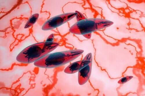 Mikroskopisk bilde av okulær toksoplasmose