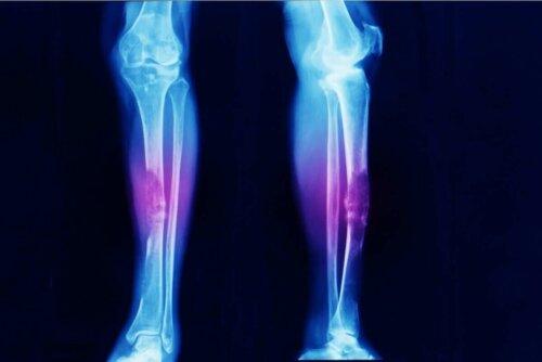 Røntgen av ben