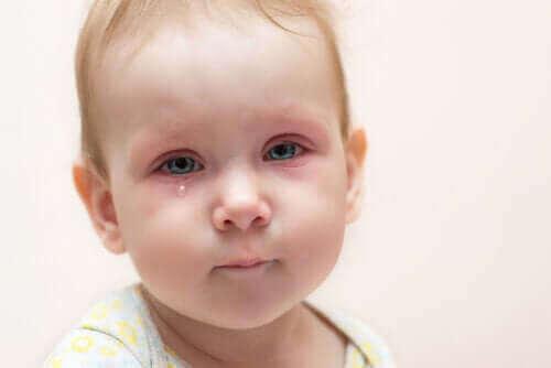 Øyekatarr hos barn: hva kan vi gjøre?