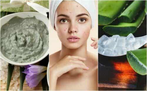 5 naturlige behandlinger mot kviser i ansiktet