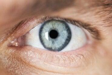 Beskrivelse av og årsaker til miose (forsnevrede pupiller)