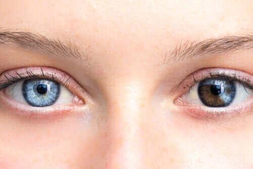 Endringer i øyenfarge kan være grunn for bekymring
